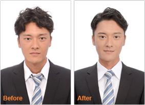【写真】メンズプラン before after